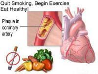 Phương pháp đo huyết áp chính xác