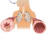 Chất xơ có thể ngừa bệnh hen suyễn