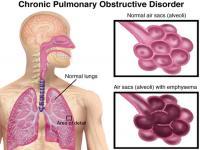 Bệnh phổi tắt nghẽn mãn tính COPD- tác hại của thuốc lá