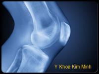 Điều trị và phòng tránh viêm xương khớp