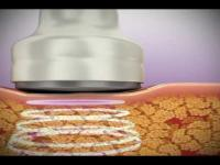 Công nghệ giảm béo Multipolar RF