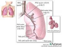 Dấu hiệu và triệu chứng của viêm phổi